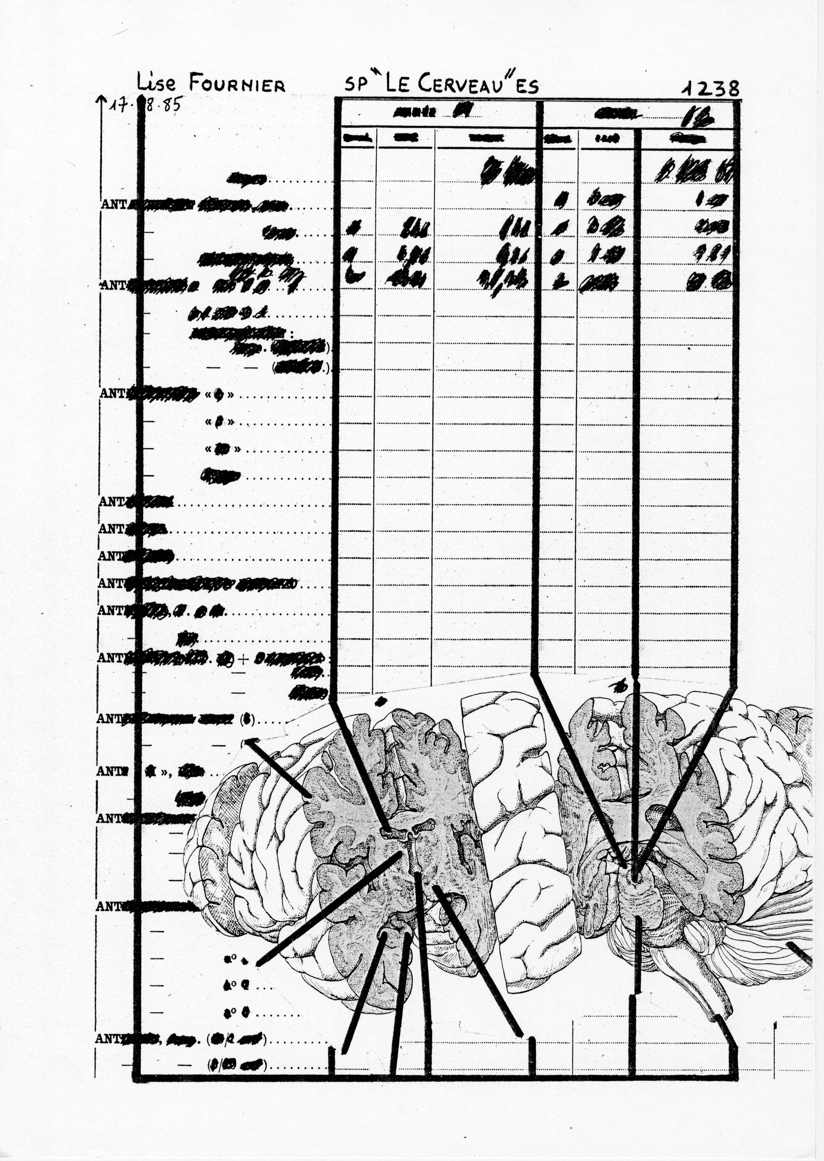 page 1238 L. Fournier SP -LE CERVEAU- ES